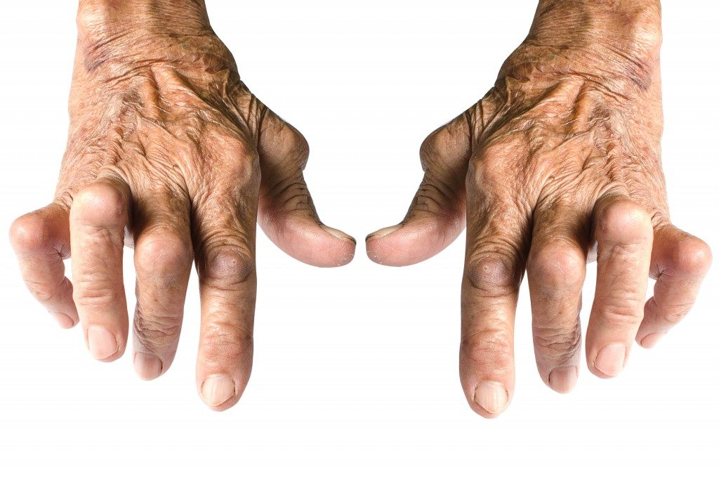 Hands Deformed From Rheumatoid Arthritis