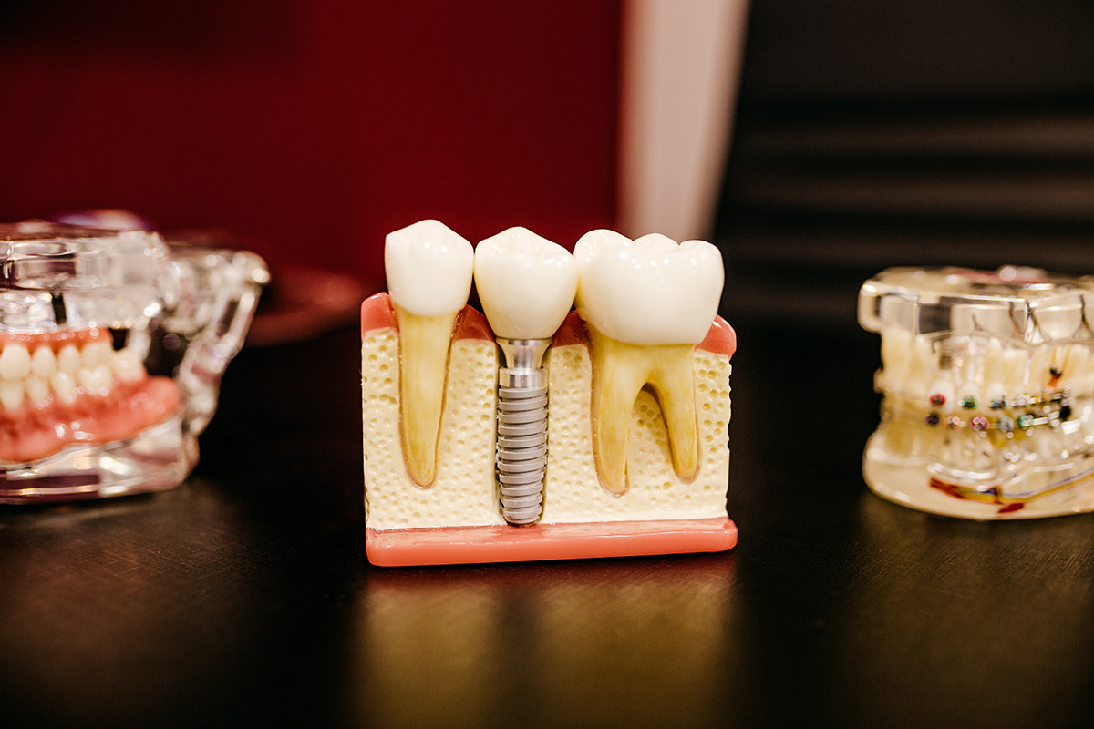 Dental implants, providing stability to the everyday smile