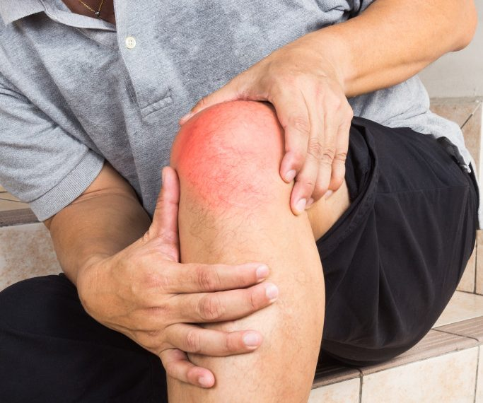 Say No to Arthritis Pains